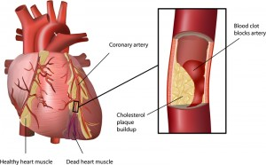 Graph of a heart that has suffered an attack due to elevated cholesterol