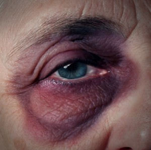 Senior citizen who has been abused and hit so hard he has a bruise on his eye socket