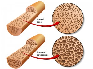 A healthy bone and bones with osteoporosis