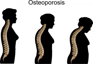 Shows progression of a woman battling osteoporosis over time