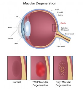 Description of both wet and dry macular degeneration