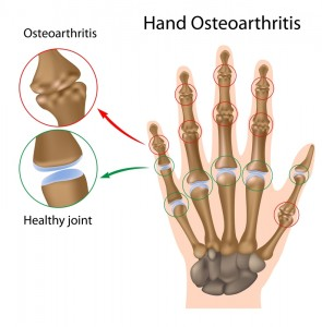 Outlines what Osteoarthritis looks like in the hands and finger joints