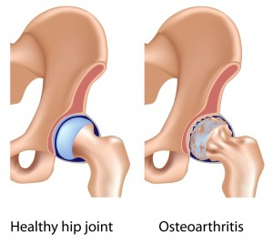 Picture showing Osteoarthritis in the hips and hip joints