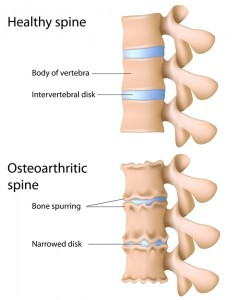 Arthritic and non-arthritic spine side by side